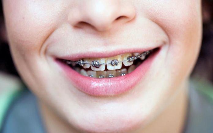 Nak cantik tapi 5 kesalahan ini sering dilakukan si pemakai pendakap gigi