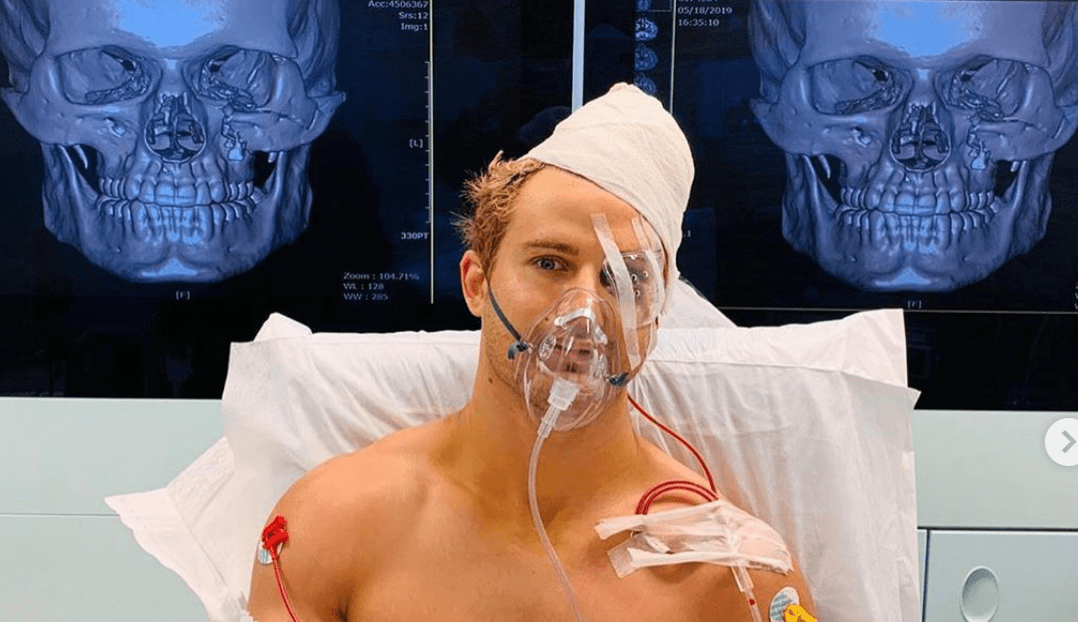 Sage Northcutt Suffered Eight Fractures At ONE: Enter The Dragon
