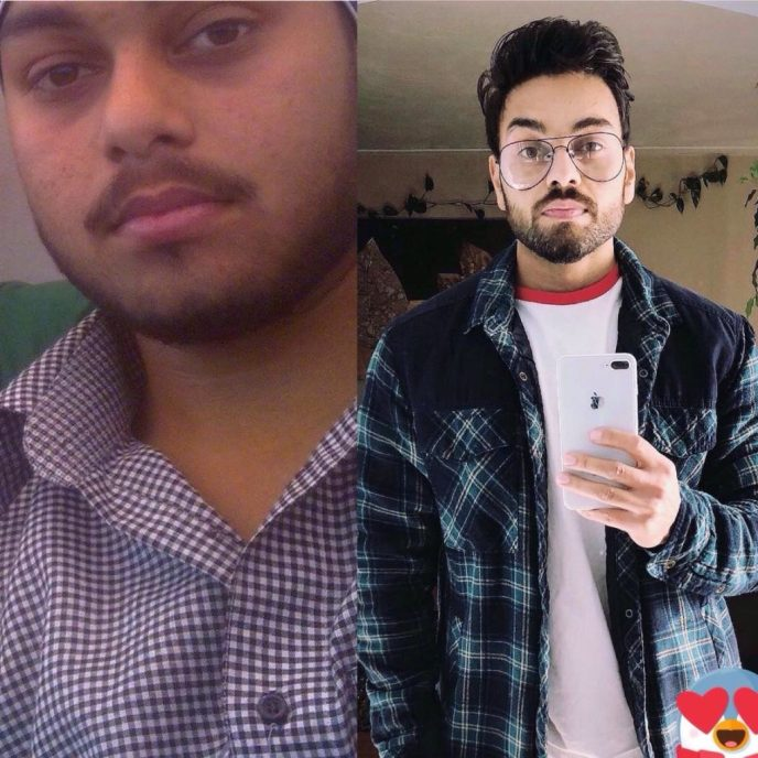 charjit singh before and after