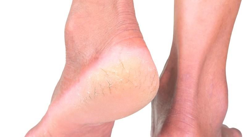 Füße - rissige Haut an den Fußsohlen