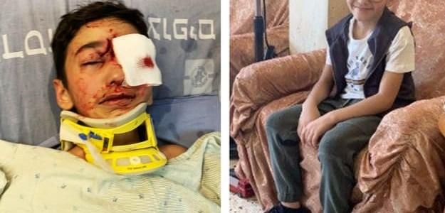 israelische-politieman-schiet-palestijnse-jongen-kogel-in-het-gezicht-–-the-rights-forum