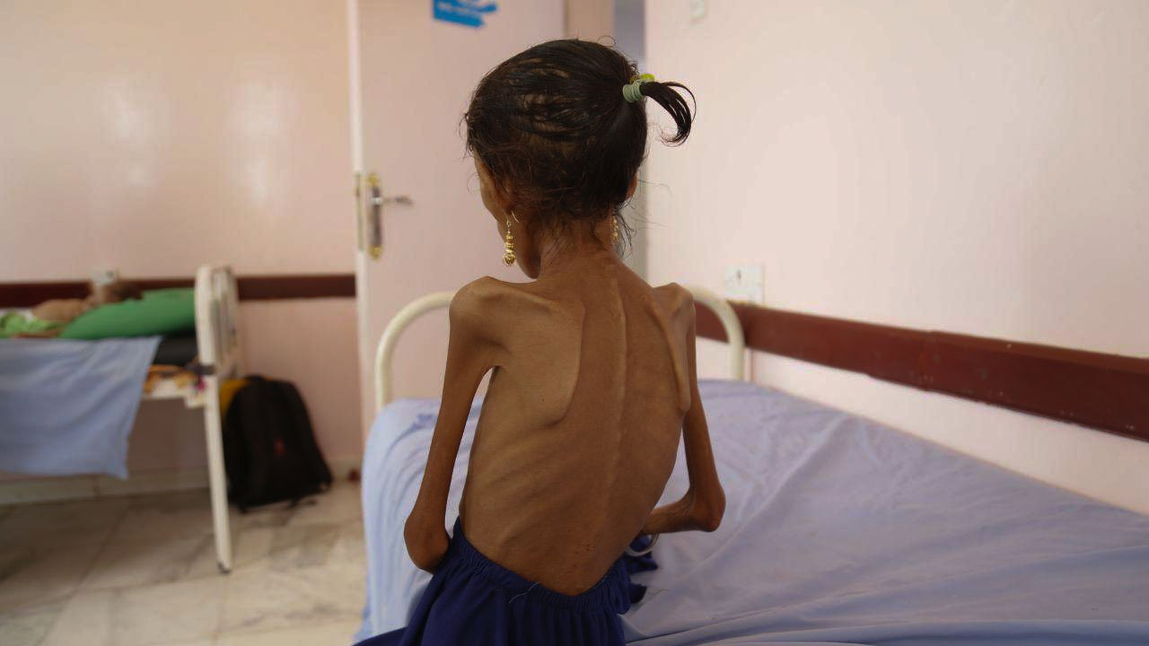 how-'defense'-contractors-lobbied-for-war-in-yemen-and-reaped-the-profits-from-death-and-destruction-–-global-research