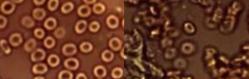 arts-deelt-afschuwelijke-beelden:-dit-doen-coronavaccins-met-je-bloed