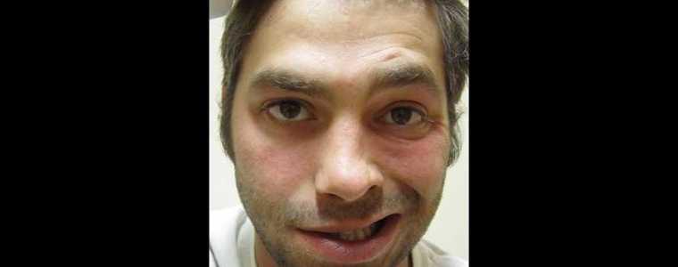 pfizer-bezorgde-mijn-zoon-een-gezichtsverlamming-–-een-persoonlijk-verhaal-van-ab-gietelink