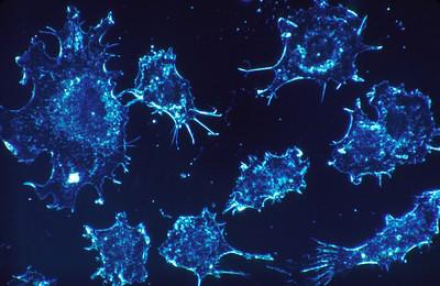 """de-incidentie-van-kanker,-veroorzaakt-door-het-covid-19-""""vaccin"""""""