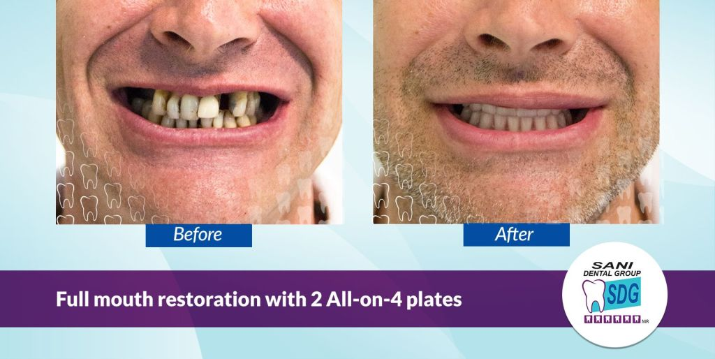 All-on-4 Before and After Photo at Sani Dental Group