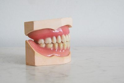 full set of dentures on a stand