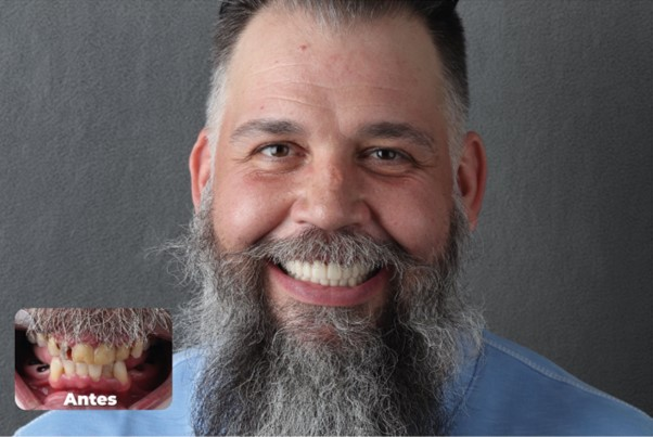 All-on-4 Dental Implants restoration
