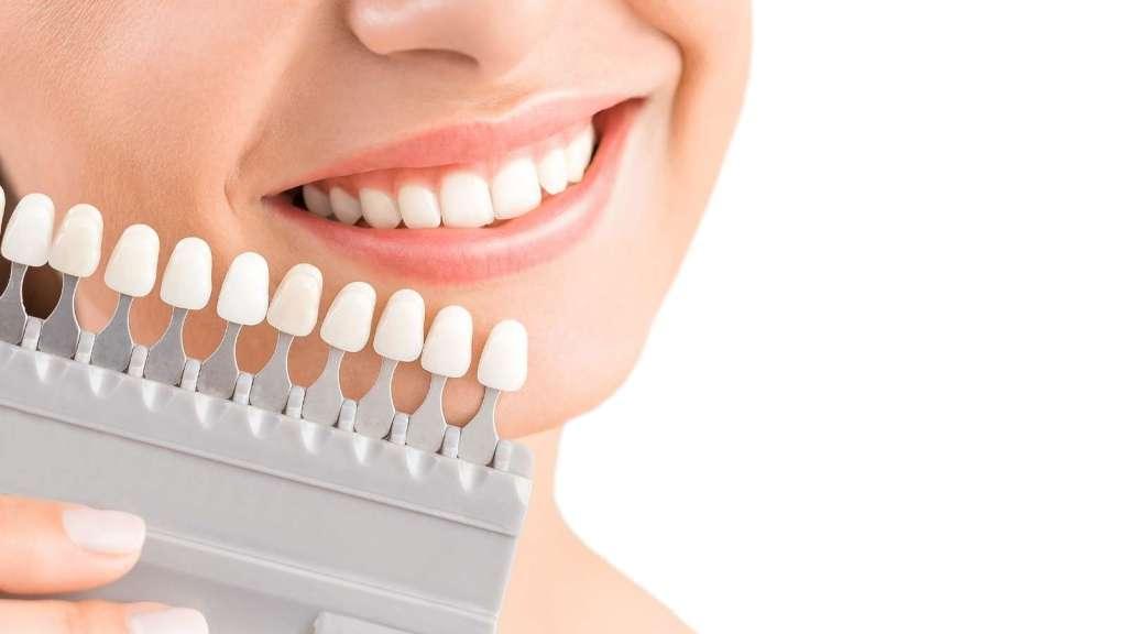 Teeth Whitening in Tijuana