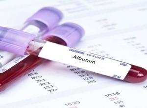 tes pemeriksaan darah albumin