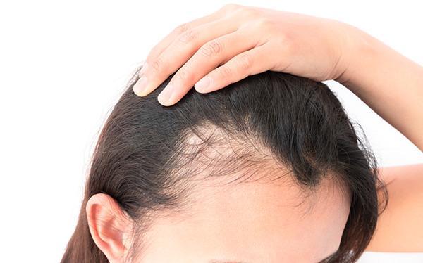 Haaruitval (alopecia)