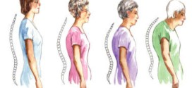 Osteoporosis Bone Tissue Disease; Causes, Symptoms and Prevention.