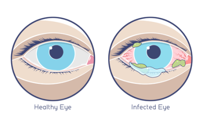 Pink Eye: Usually Mild and Easy to Treat