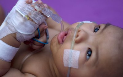 RSV in Infants and Young Children