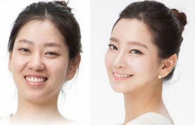 cara de chica coreana antes y después de operarse.