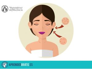 Aprender Gratis | Curso de dermatología completo