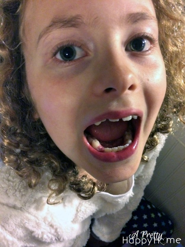 2015-04-10-Annika-9th-lost-tooth