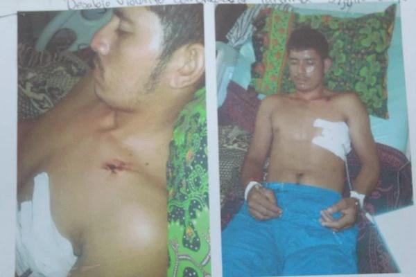 Fotos fornecidas pela comunidade Panamá documentam os ferimentos sofridos por camponeses quando soldados hondurenhos os expulsaram de uma ocupação na fazenda Paso Aguán, da Dinant, em julho de 2014