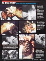 Kennedy-autopsy-Groden-iv