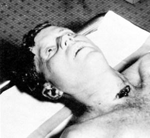 Kennedy-autopsy