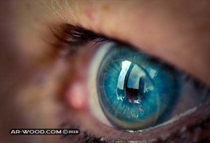 اضرار زراعة العدسات داخل العين