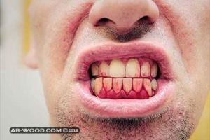 علاج نزيف اللثة ورائحة الفم