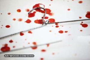 كم مدة نزول الدم بعد الاجهاض في الشهر الاول