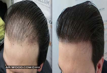 ما الذي ينبغي علي فعله قبل زراعة الشعر؟