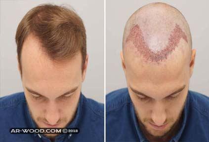 ما هي أكثر المخاطر شيوعا في زراعات الشعر؟