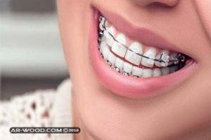 أنواع تقويم الأسنان بالصور وأسعارها