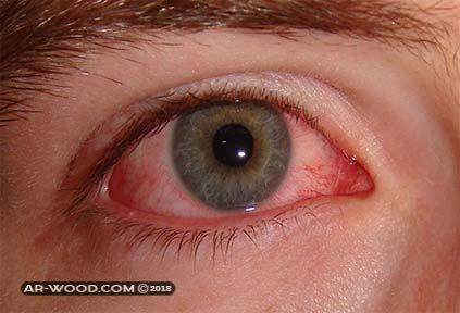 احمرار العين بعد عملية المياه البيضاء