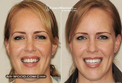 بروز الاسنان قبل وبعد 2