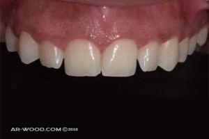 تجميل الاسنان الامامية بدون تقويم