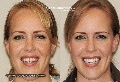 ترجيع الاسنان بدون تقويم