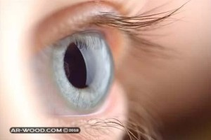 تكلفة زراعة العدسات داخل العين