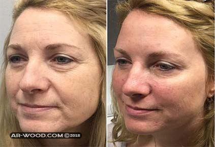 حقن الدهون فى الوجه قبل وبعد 1