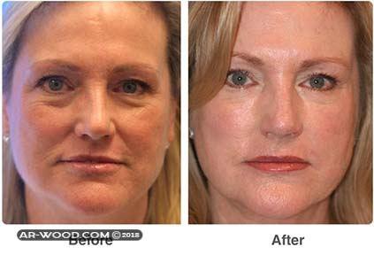 حقن الدهون فى الوجه قبل وبعد 2