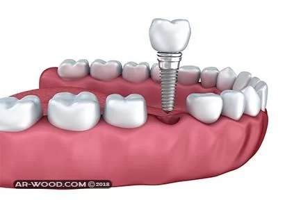 زراعة الاسنان كم تاخذ وقت