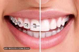 سد الفراغات بين الاسنان بدون تقويم