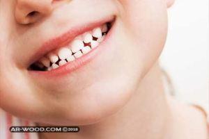 علاج التهاب الفم واللثة عند الاطفال