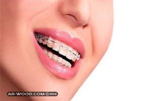 مدة تقويم الاسنان لسد الفراغات