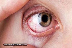 علاج الاكياس الدهنية تحت العين بالاعشاب