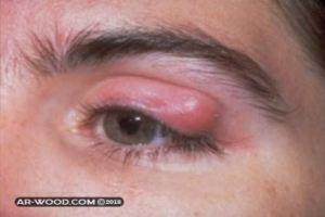 علاج حبة في جفن العين العلوي