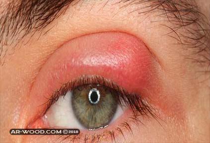انتفاخ جفن العين العلوي عند الاطفال