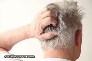 اسباب الم فروة الراس وتساقط الشعر