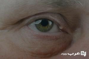 مرهم لعلاج الكيس الدهني في العين عرب وود