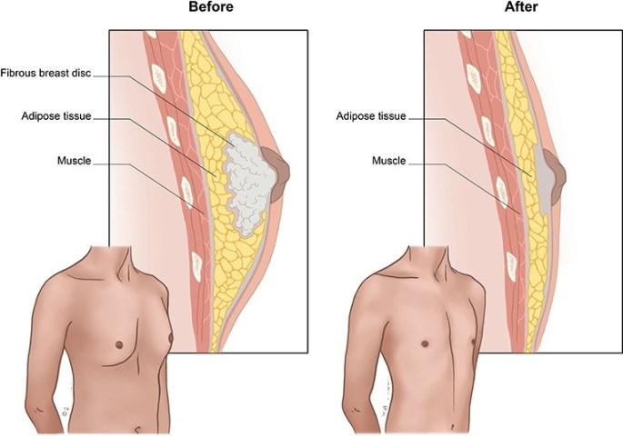 علاج تضخم الثدي عند الرجال قبل و بعد