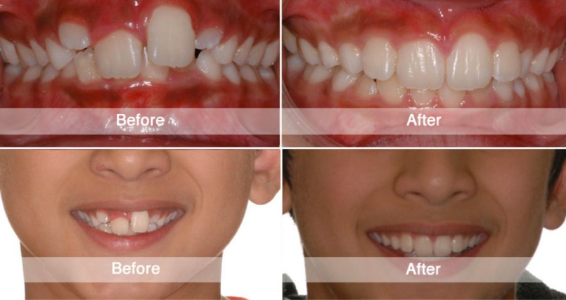 before-after dentist Istanbul