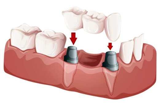 Dentist Istanbul