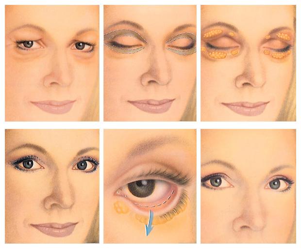 eyelid surgery - Istanbul, Turkey